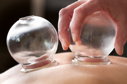 cupping therapy seattle