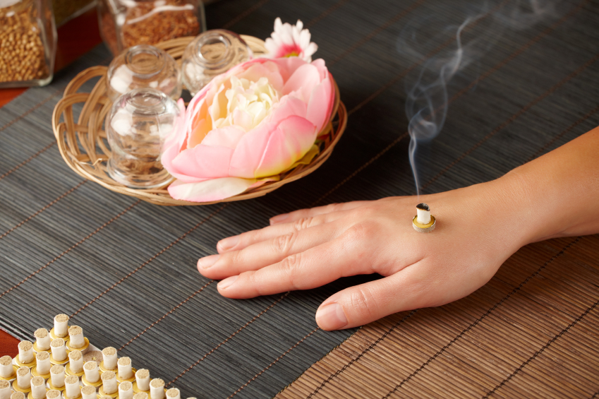 Traditional Chinese moxibustion therapy