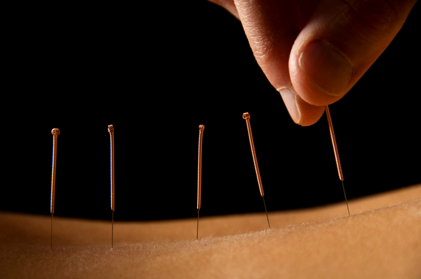 Bellevue, WA acupuncture clinic
